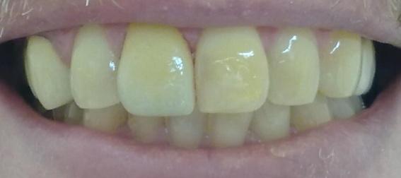 Veneer auf Zahn 21
