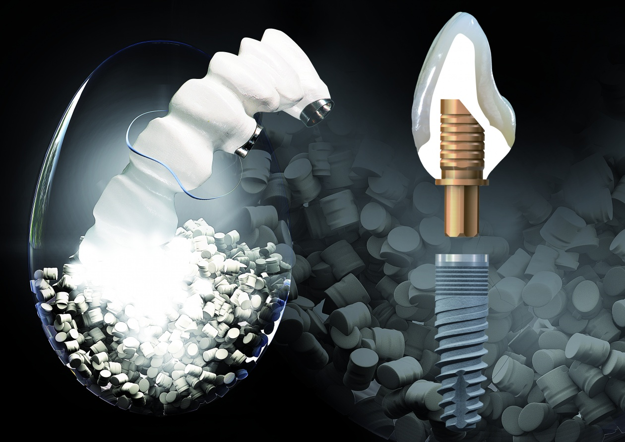 Implantattechnik & Abutments