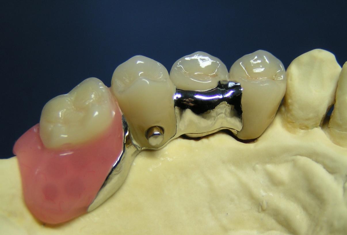 Riegelprothese mit Konfektions-Riegel